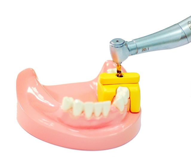 The template is placed over the gum to help dentists precisely perform implant surgery.